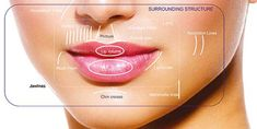 Lip Augmentation – Why Dermal Fillers Are Best ...
