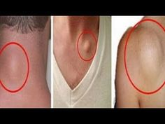 The Best Recipe for Natural Fatty Tissue (Lipoma) Removal in 8 Days. Thousands Confirmed This Herbal Remedies, Health Remedies, Home Remedies, Natural Cures, Natural Healing, Natural Treatments, Lipoma Removal, How To Get Rid, Hair Loss