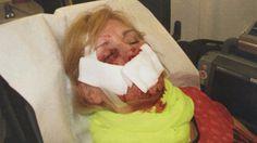Que Marion Z. (55 ans) puisse encore voir est presque un miracle. Son mari…
