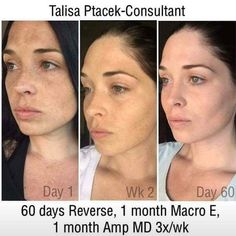 Ever wish you didn't have so many freckles or sun spots?  Did you know they can be removed by simply washing your face daily?  REVERSE regimen will even out the skin tone for a beautiful smooth glow.  All Rodan  Fields regimens come with a 60 day money back guarantee! Let's get you started today!  Purchase through my website in bio it will be at your doorstep in a few days.  #unevenskin #unevenskintone #reverseregimen #freckless #freckles #glowingskin #brownspotsonface #brownspotsremoval…