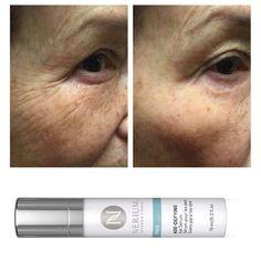#nerium #makingpeopebetter www.Kimberlybeth.nerium.com #eyeserum #antiaging #wow #darkcircles #finelines #puffiness #gone Nerium, Eye Serum, Dark Circles, Skin Care, Skincare Routine, Skins Uk, Skincare, Asian Skincare, Skin Treatments