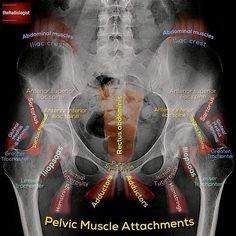 Take a look at this annotated X-Ray, which exhibits you the place a number of the pelvic muscular tissues… – free medical books Muscle Anatomy, Body Anatomy, Radiology Student, Medical Anatomy, Human Anatomy And Physiology, Nursing Notes, Abdominal Muscles, Abdominal Aorta, Medical Information