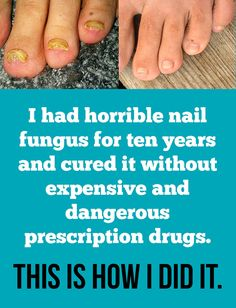I had horrible toenail fungus for ten years and cured it without dangerous and expensive prescription drugs. See pictures … I had horrible toenail fungus for ten years and cured it without dangerous and expensive prescription drugs. See pictures … Toe Fungus Remedies, Toenail Fungus Remedies, Toenail Fungus Treatment, Fungus Toenails, Cure For Toenail Fungus, Toe Fungus Cure, Antifungal Nail Treatment, Toenail Pain, Nail Designs