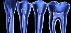Ce médicament utilisé dans le traitement de l'Alzheimer pourrait régénérer naturellement vos dents