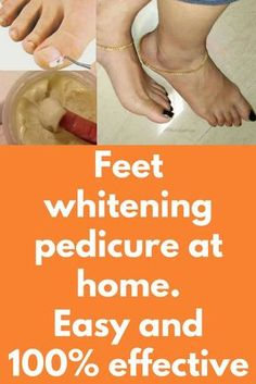 Feet whitening pedicure at home. Easy and effective Pedicure Soak, White Pedicure, Diy Pedicure, Pedicure At Home, Top Skin Care Products, Skin Care Regimen, Skin Care Tips, Skin Tips, Beauty Products