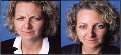Before and After photo of Toronto Botox patient www.spamedica.com #botoxtoronto