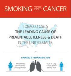 Cancer Infographics | CTCA