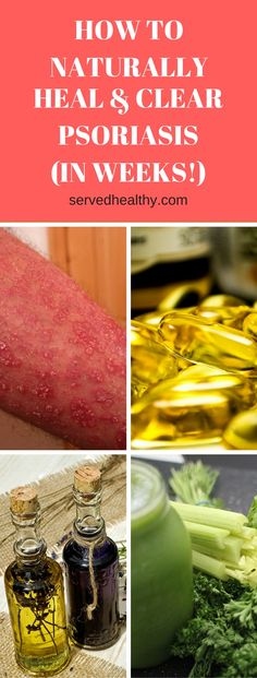 How To Naturally Heal And Clear Psoriasis (In Just Weeks) - Served Healthy