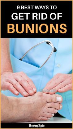 How to Get Rid of Bunions Without Surgery? shoes shoesforwomen diy decor dresses fashion moda homedecor home hairstyles hair women womensfashion outfits outdoor wedding recipes sports sporty ? Best Shoes For Bunions, Get Rid Of Bunions, How To Treat Bunions, Health Facts, Health Tips, Corn On Toe, Get Rid Of Corns, Tailors Bunion, Bunion Remedies