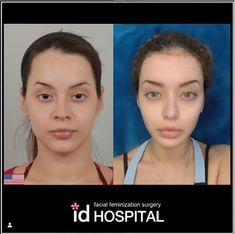 👉 Vline surgery + Forehead reduction by Doctor Lim Jong Woo 👉 lifting + Full face fat grafting by Doctor Kwon Ju Yong ____ Face Plastic Surgery, Korean Plastic Surgery, Brow Lift Surgery, Nose Surgery, Forehead Reduction, Facial Feminization Surgery, Face Transformation, Face Fillers, Makeup Spray