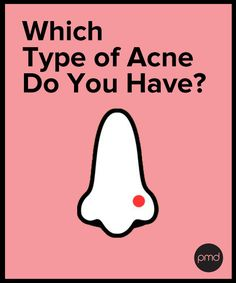 There are different types of acne and they should be treated differently. Here are the 5 Types of Acne and some quick tips on how to treat them.