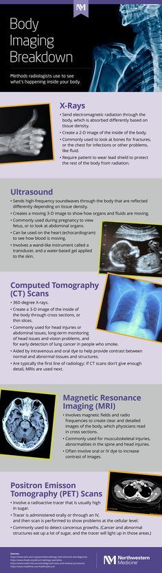 Since the invention of the X-ray in radiology has been a vital tool for physicians to see what's going on in your body to properly diagnose and treat you, but what do these scans mean and how do physicians use them? Radiology, Ultrasound, Body Image, Inventions, Infographic, Medical, Medical Doctor, Medicine, Med School