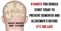 9 habits you have to start today if you want to prevent dementia and Alzheimer's before it's too late
