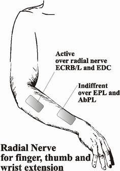 Radial Nerve - finger, thumb, and wrist extension