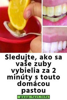 Sledujte, ako sa vaše zuby vybielia za 2 minúty s touto domácou pastou Soap, Beauty, Beauty Illustration, Bar Soap, Soaps