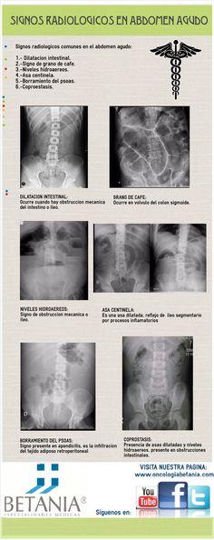 Infografía sobre signos radiológicos en abdomen agudo. Dr Ramírez.
