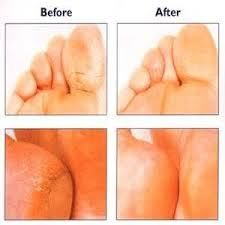 Dry cracked feet remedy- I've done the vinegar one and it does make your feet feel great afterwards.