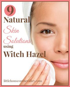 9 Natural Skin Solutions Using Witch Hazel - Little House on the Valley