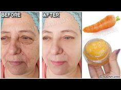 YouTube Carrot Cream, Pigmentation, Herbal Cure, Les Rides, Skin Care Remedies, Wrinkle Remover, Youtube, Aging Gracefully, Face Cleanser