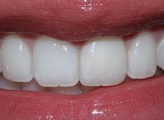 94 Melhores Imagens De Dentes Perfeitos Em 2019 Perfect Teeth