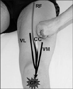 See figure: Figure 2. The MFU (Myofascial Unit) for knee extension comprises monoarticular components (vastus lateralis VL, medialis: VM, and intermedius), and biarticular components (rectus femoris: RL). The CC (center of coordination) for this MFU is situated midway on the thigh over the deep fascia between vastus lateralis and rectus femoris and the CP (center of perception) is located in the anterior knee joint. from publication: Fascial manipulation | Manipulation, Musculoskeletal…