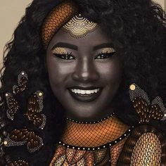 She was relentlessly teased for her dark skin, but now Khoudia Diop is showing the world black is beautiful.