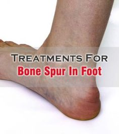 how to fix a foot bone spur