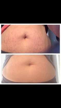 Get rid of your stretch marks, cellulite, and make your skin look more firm with Nerium Firm! Natural Skin Tightening, Skin Tightening Cream, Stretch Marks On Thighs, Cellulite Scrub, Skin Care Routine For 20s, Sensitive Skin Care, Homemade Skin Care, Homemade Beauty, Diy Home
