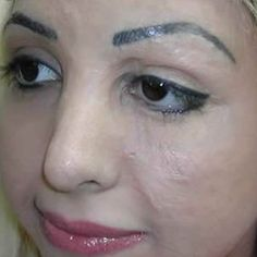 Pin for Later: Watch a Tattoo Artist Change a Burn Victim's Life With Permanent Makeup