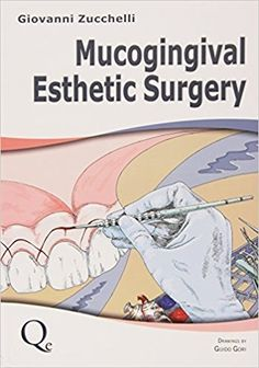Dentaltown - Mucogingival Esthetic Surgery by Prof. Giovanni Zucchelli DDS, PHD https://www.amazon.com/Mucogingival-Esthetic-Surgery-Giovanni-Zucchelli/dp/8874921713