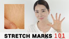 5 Essential Tips for Stretch Marks