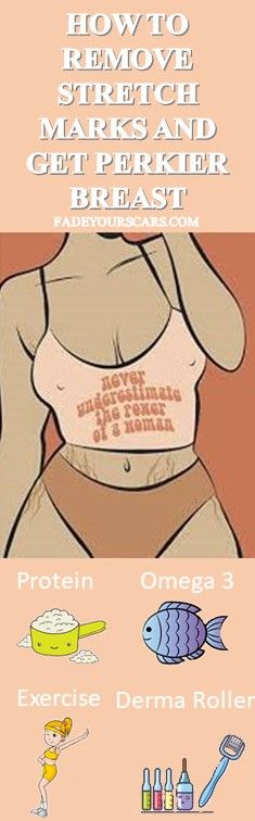 If you want to have perfectly perky breasts you need to get rid of stretch marks. Stretch marks are Stretch Marks On Thighs, Laser Stretch Mark Removal, Scar Reduction, Derma Roller, Body Hacks, Skin Treatments, Skin Care Tips, Rid