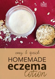 Here is an easy and super-quick recipe for natural homemade eczema cream you can make at home that will treat the symptoms and help comfort your dry skin. skin care Homemade Eczema Cream Recipe for Dry Winter Skin - Five Spot Green Living Eczema Remedies, Skin Care Remedies, Natural Remedies, Herbal Remedies, Homemade Skin Care, Homemade Moisturizer, Hygiene, Soap Recipes, Natural Skin Care