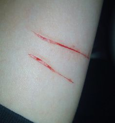 Selfharm suicide cutting blood selfhate die sad depressed lifeless scars suicidal not good enough