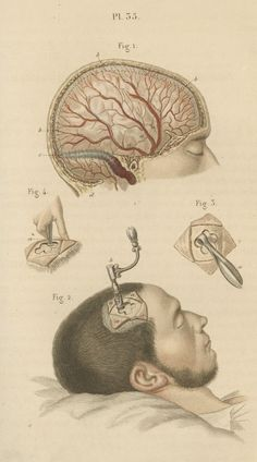 Técnica de trepanación según Claude Bernard 'Illustrated Manual of Operative Surgery and Surgical Anatomy', New York, 1864.