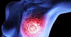 Janette Murray-Wakelin erhielt im Jahr 2001 ihre Diagnose: Brustkrebs im…