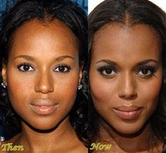 Kerry Washington Plastic Surgery Before And After Photo