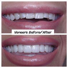 Call us today for a FREE consultation - Cosmetic Dentistry - Ceremic Veneers Teeth, Dental Veneers, Beautiful Teeth, Teeth Shape, Perfect Teeth, Dental Care, Smile Dental, Smile Teeth, Teeth Bleaching