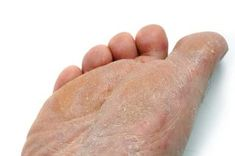 Learn how to cure and prevent athletes foot fungus with our zinc and tea tree lotion.    http://www.skin-and-scalp-treatment.com/best-athletes-foot-lotion.html