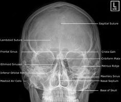 Radiographic Anatomy - PA Caldwell