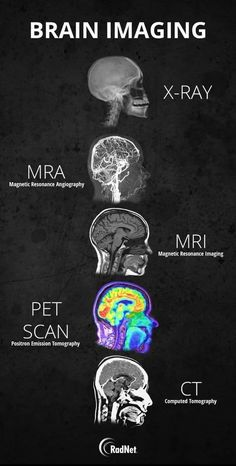 Science Discover Guide to different types of brain imaging : coolguides Radiology Student Medical Students Nursing Students Medical Facts Medical Information Medical Care Nursing School Notes Medical School Human Anatomy And Physiology Medical Facts, Medical Science, Brain Science, Life Science, Computer Science, Mri Brain, Medical Engineering, Medical Careers, Medical Assistant