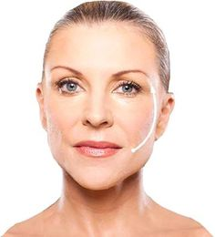 SAGGY SKIN NO MORE! #silhouettesoft #SkinRenewal #facialthreads #antiageing http://www.hbhealthofknightsbridge.co.uk/thread-lift/