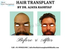 Hair Transplant Surgery, Best Hair Transplant, Eyelashes, Eyebrows, Moustaches, Plastic Surgery, Appointments, Hair Loss, Schedule