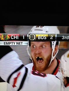 Now if this isn't the look of a classic hockey player, I don't know what is lol