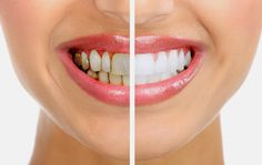 AMS Dental Clinic offers you solution to all your dental problem.We provides treatments for implants,cosmetic dentistry,and all dental treatments Zoom Teeth Whitening, Teeth Whitening Remedies, Natural Teeth Whitening, Cosmetic Dental Surgery, Cosmetic Dentistry, Dental Cosmetics, Smile Makeover, Natural Remedies, Beauty