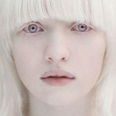 ロシアの美しすぎるアルビノ少女『ナスチャ』と先天性白皮症 - NAVER まとめ