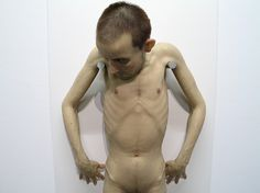 Sculpture by Sam Jinks. Not as realistic as Ron Mueck's stuff, but maybe a bit more disturbing.
