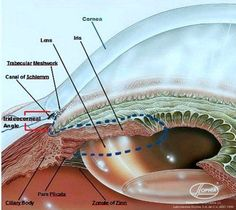 The angles formed by the cornea and the iris in the front part of the eye (anterior chamber) are closed or if they are open. The technical term for this angle is the iridocorneal angle (denoted by red brackets in the figure below). I ascertain the state of the iridocorneal angle through gonioscopy, a diagnostic test that allows me to visualize the anterior chamber in detail.:
