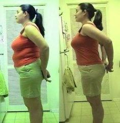 Extreme Weight Loss Before After #weightlossrecipes