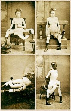 Woman with two vaginas - 3 Legged Courtesan | She had a very broad pelvis, two imperfectly developed legs and a third leg attached to her coccygeus, in addition to normal well developed breasts, she also had two smaller rudimentary breasts – complete with nipples – close together above her pubic area. Blanche also had 2 vaginas and 2 well-developed vulvas, both had equally developed sensitivity. Her sexual appetite was very pronounced. She was known to 'entertain' men with both her vaginas.